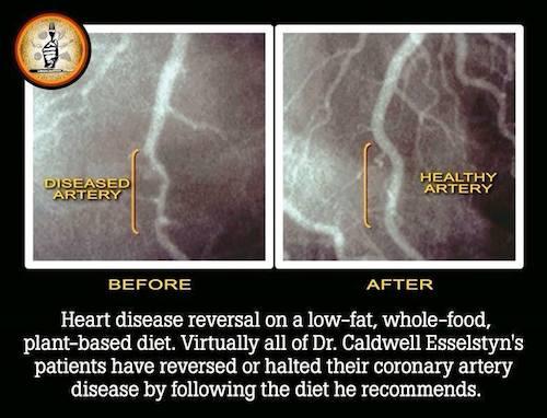 vegan diet heart problems